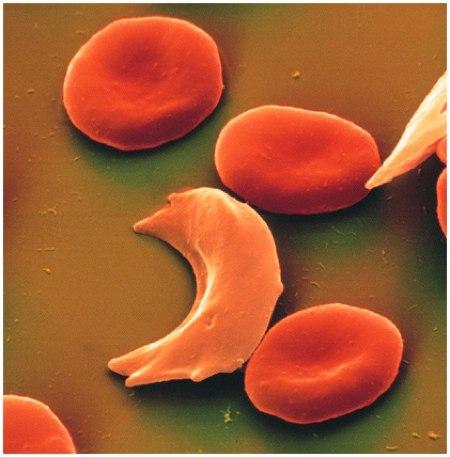 anemia-falciforme